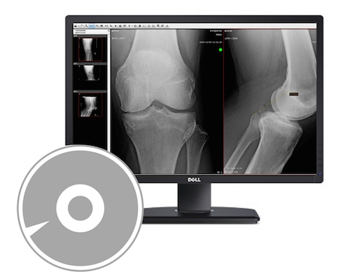 Upload medical images from CD